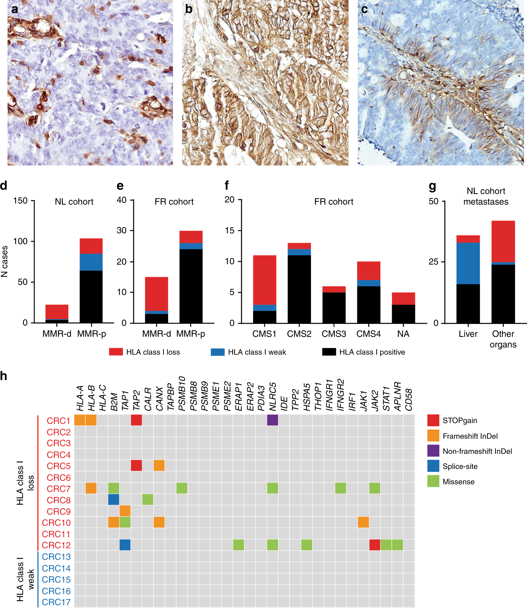 Revisiting immune escape in colorectal cancer in the era of