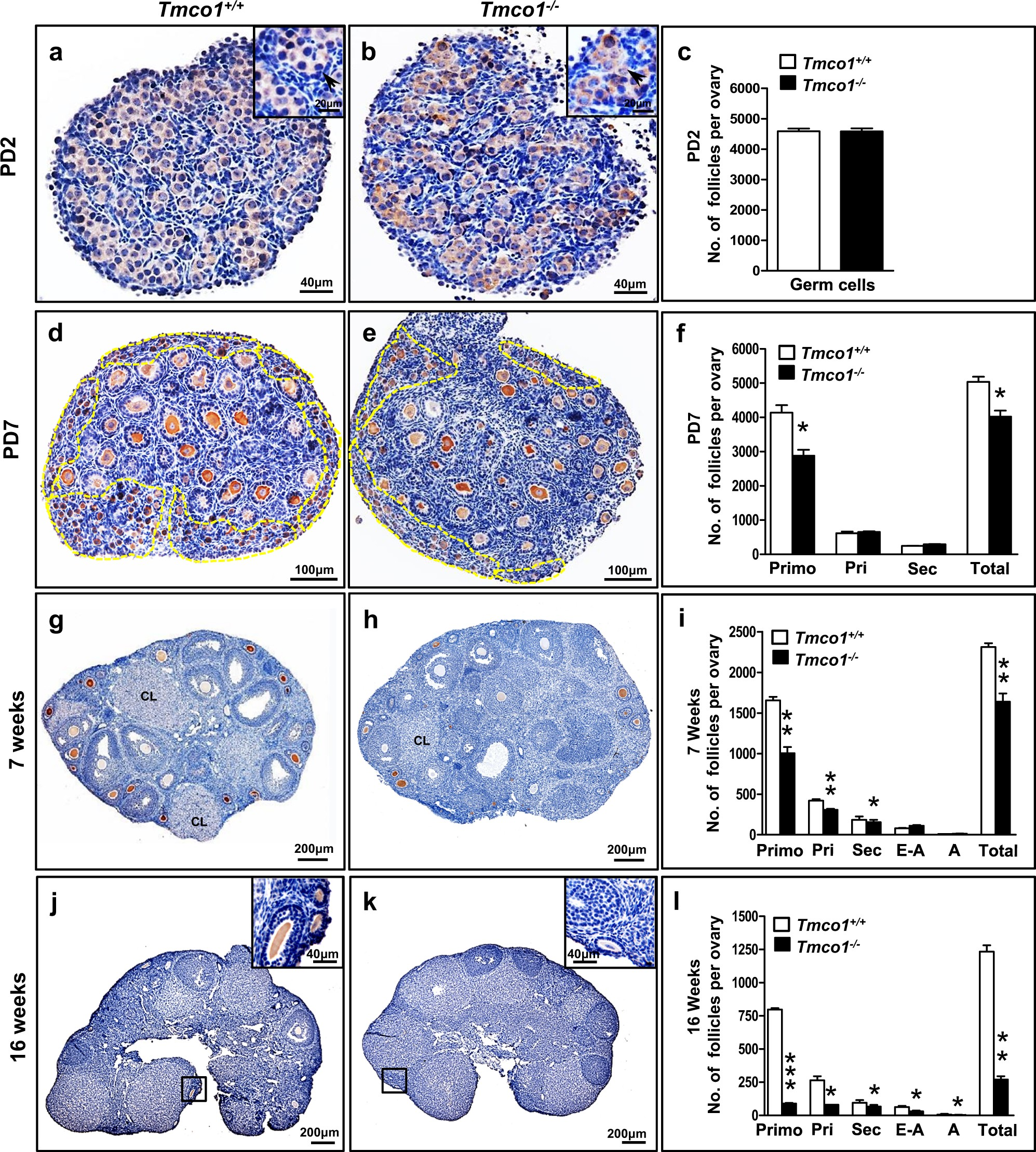 Tmco1 Is Essential For Ovarian Follicle Development By Regulating Er