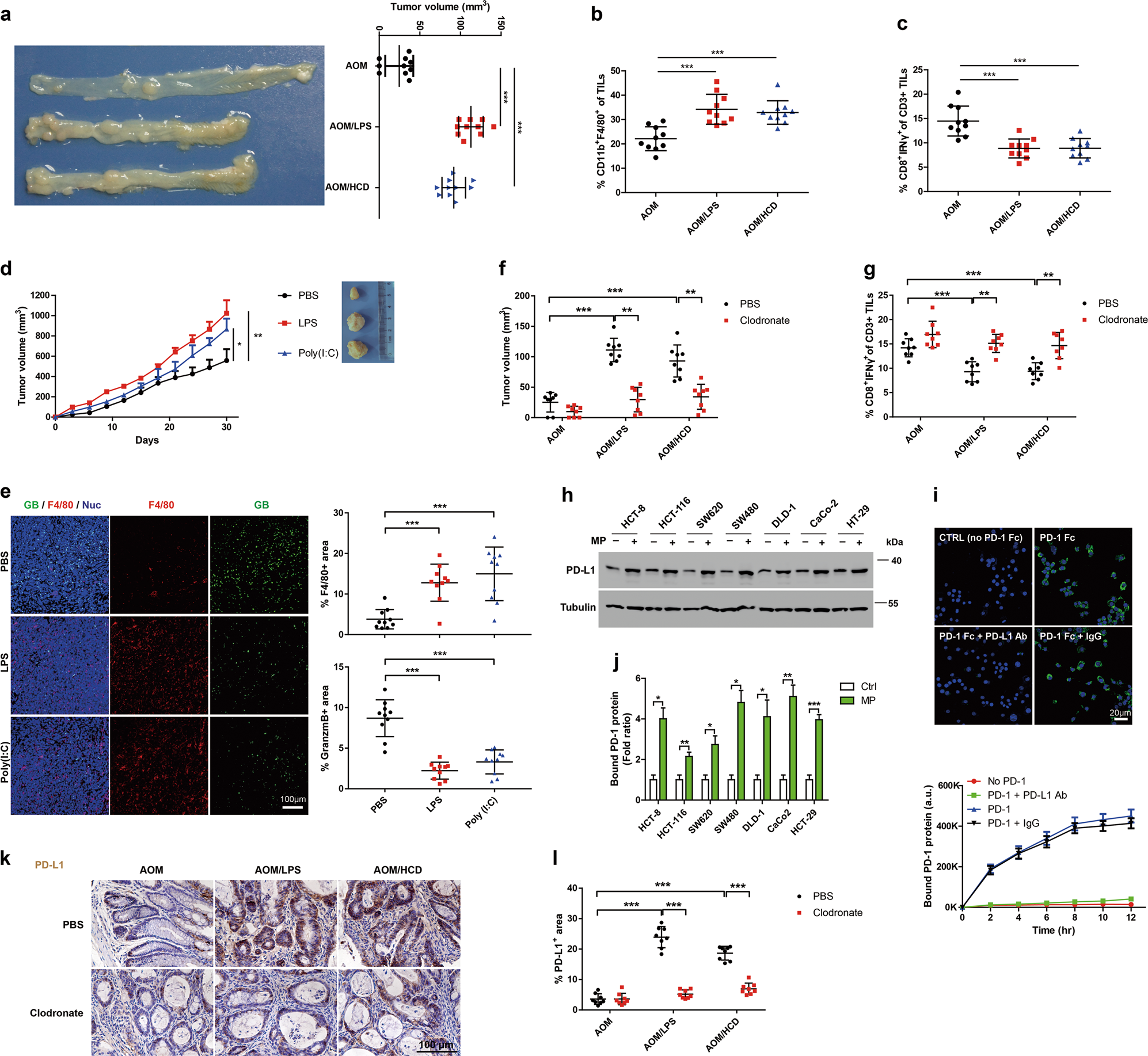 Macrophage-derived CCL5 facilitates immune escape of colorectal cancer
