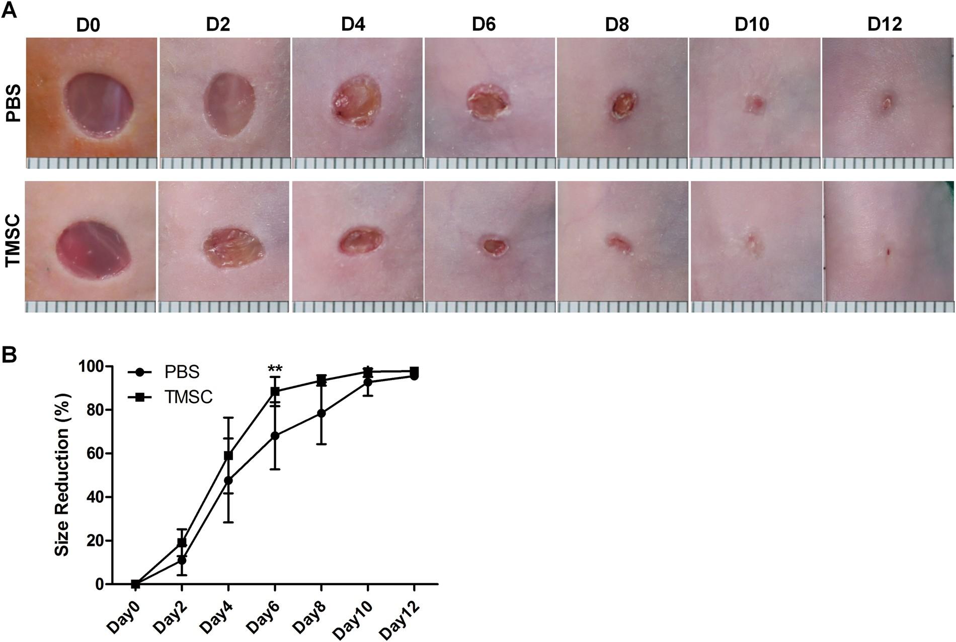 Regenerative Potential Of Tonsil Mesenchymal Stem Cells On Surgical