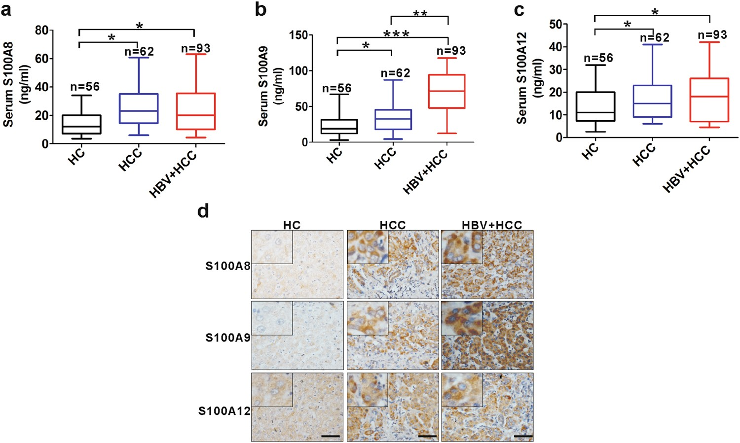 HBx-induced S100A9 in NF-κB dependent manner promotes growth and ...