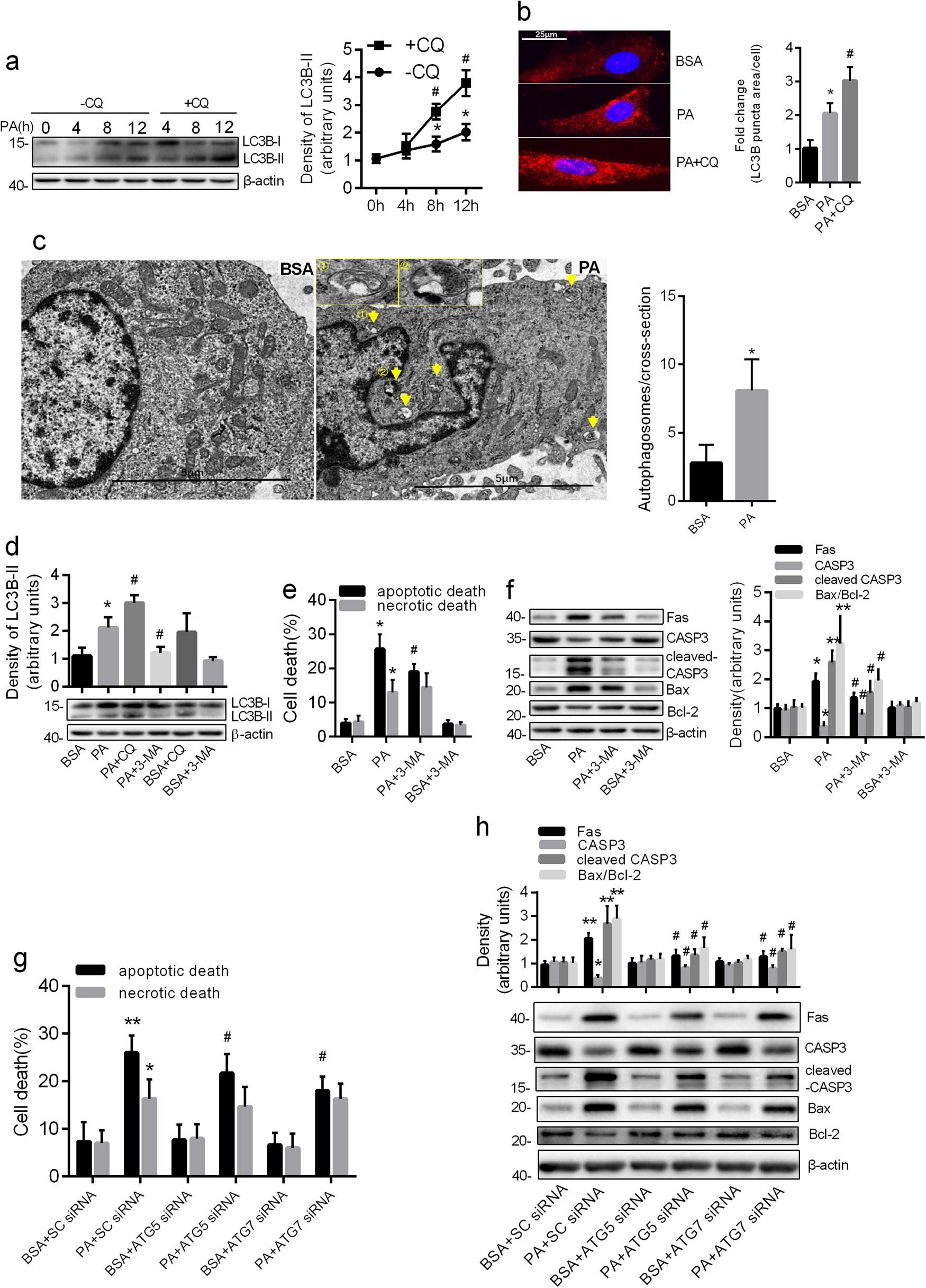 The autophagic degradation of Cav-1 contributes to PA