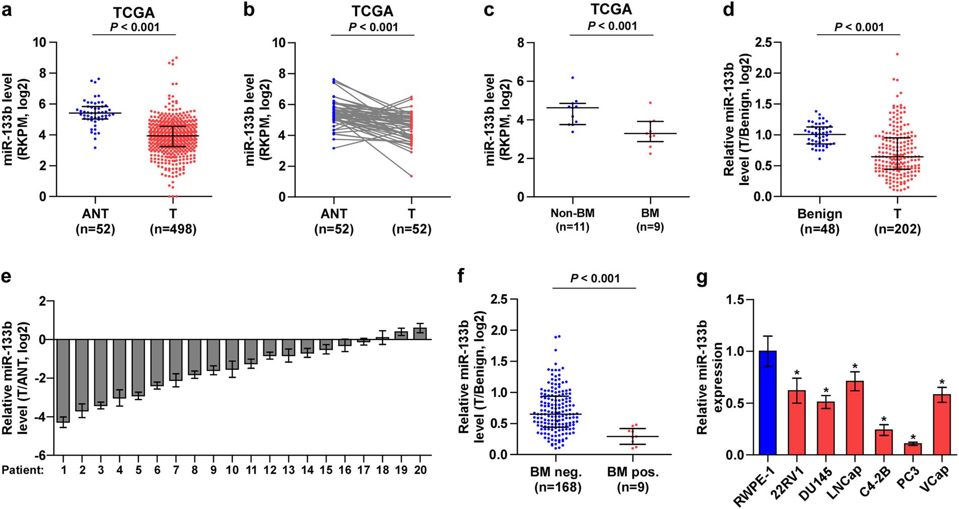 Transcriptional downregulation of miR-133b by REST promotes prostate