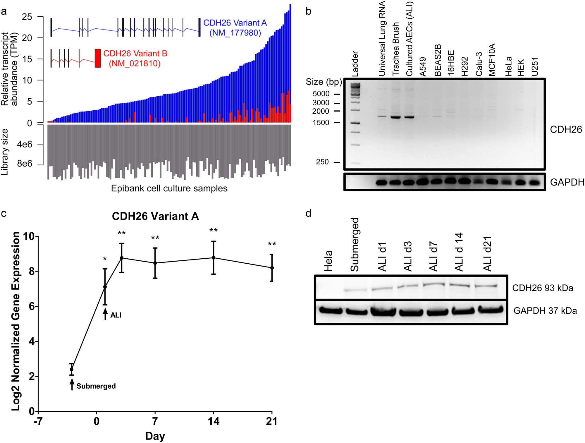 Cadherin 26 Cdh26 Regulates Airway Epithelial Cell Cytoskeletal When The Switch Is Open Voltmeter Reads 60 V And It Structure Polarity Discovery