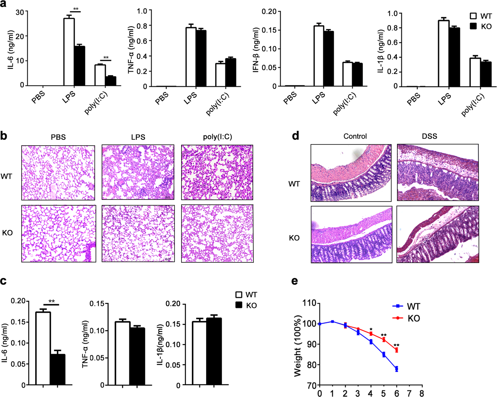 KDM2B promotes IL-6 production and inflammatory responses ... on