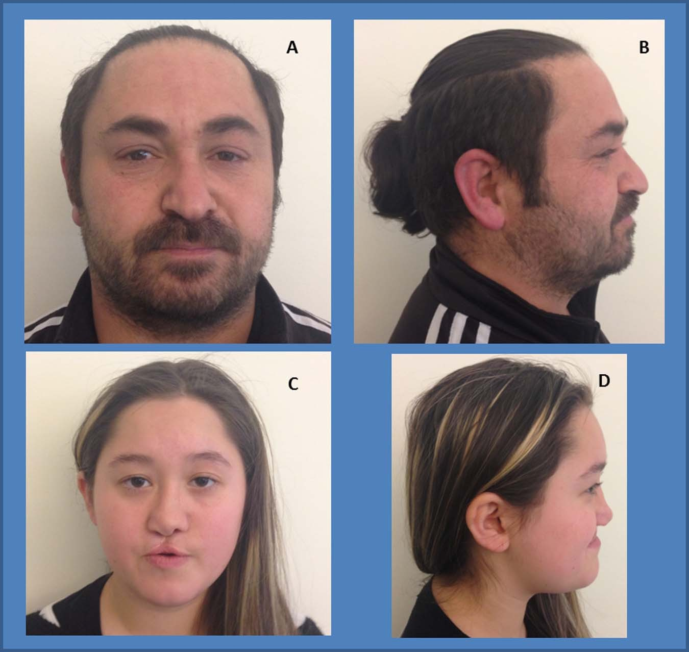 Schilbach–Rott syndrome associated with 9q22 32q22 33 duplication