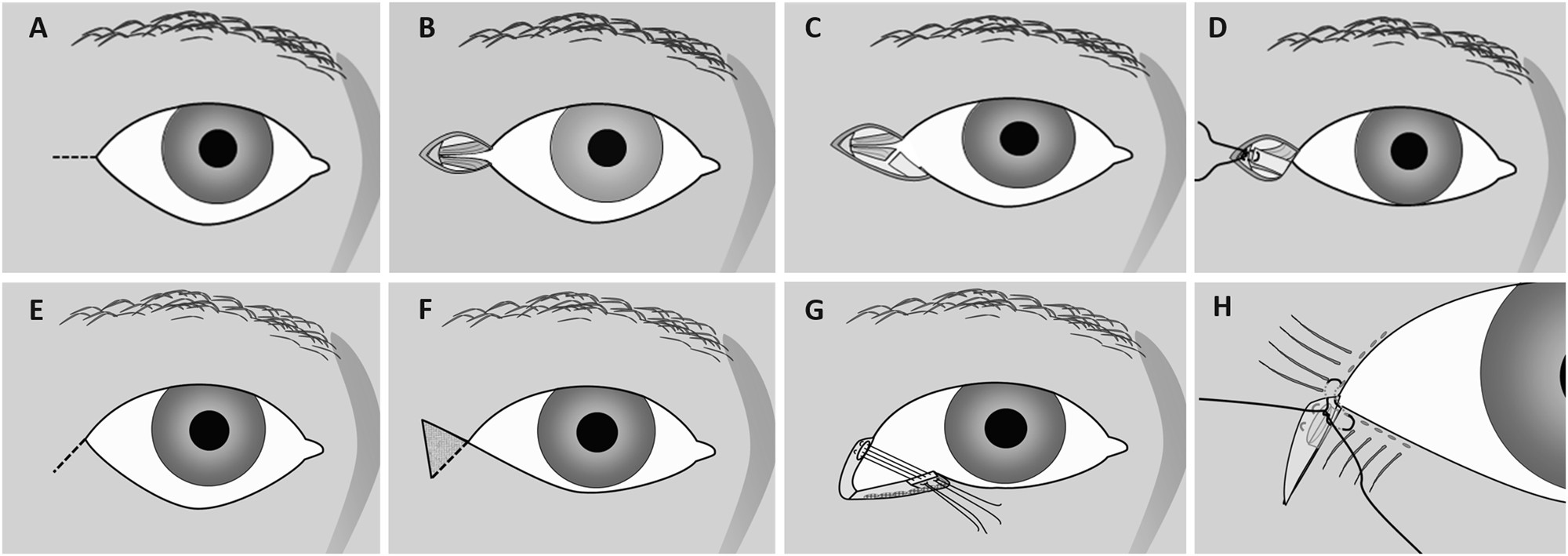 Lateral Tarsal Strip Versus Bicks Procedure In Correction Of Eyelid Jacquelle Eyebrow Scissors Malposition Eye