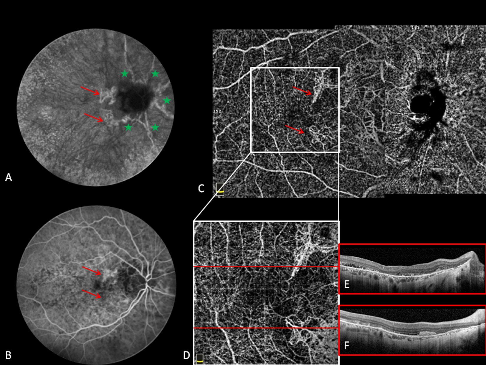 Optical Coherence Tomography Angiography Features Of Choroidal Neovascularization Secondary To Angioid Streaks