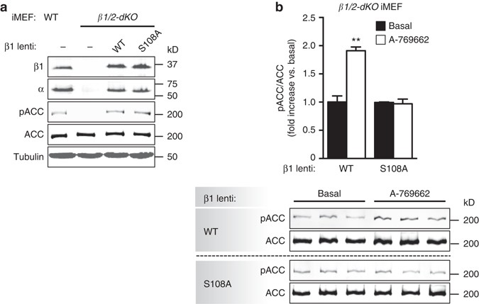 The autophagy initiator ULK1 sensitizes AMPK to allosteric drugs