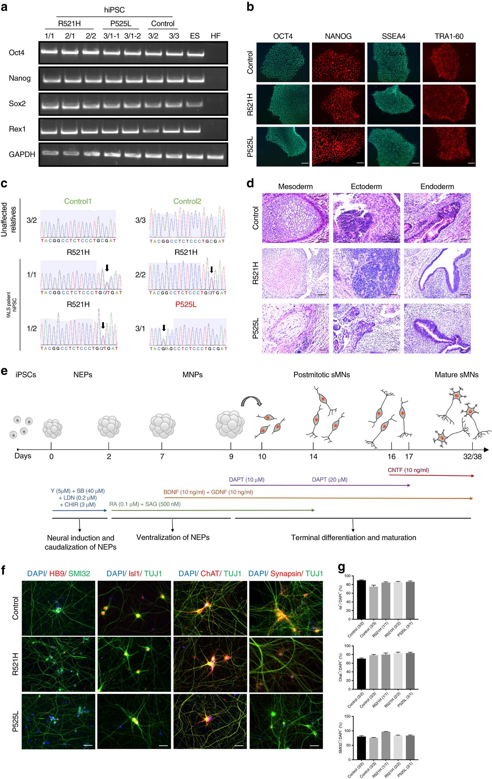 HDAC6 inhibition reverses axonal transport defects in motor