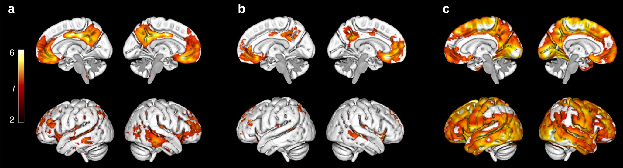 Earliest Accumulation Of Amyloid Occurs Within The Default Mode Drz 400 2005 Wiring Diagram Network And Concurrently Affects Brain Connectivity Nature Communications