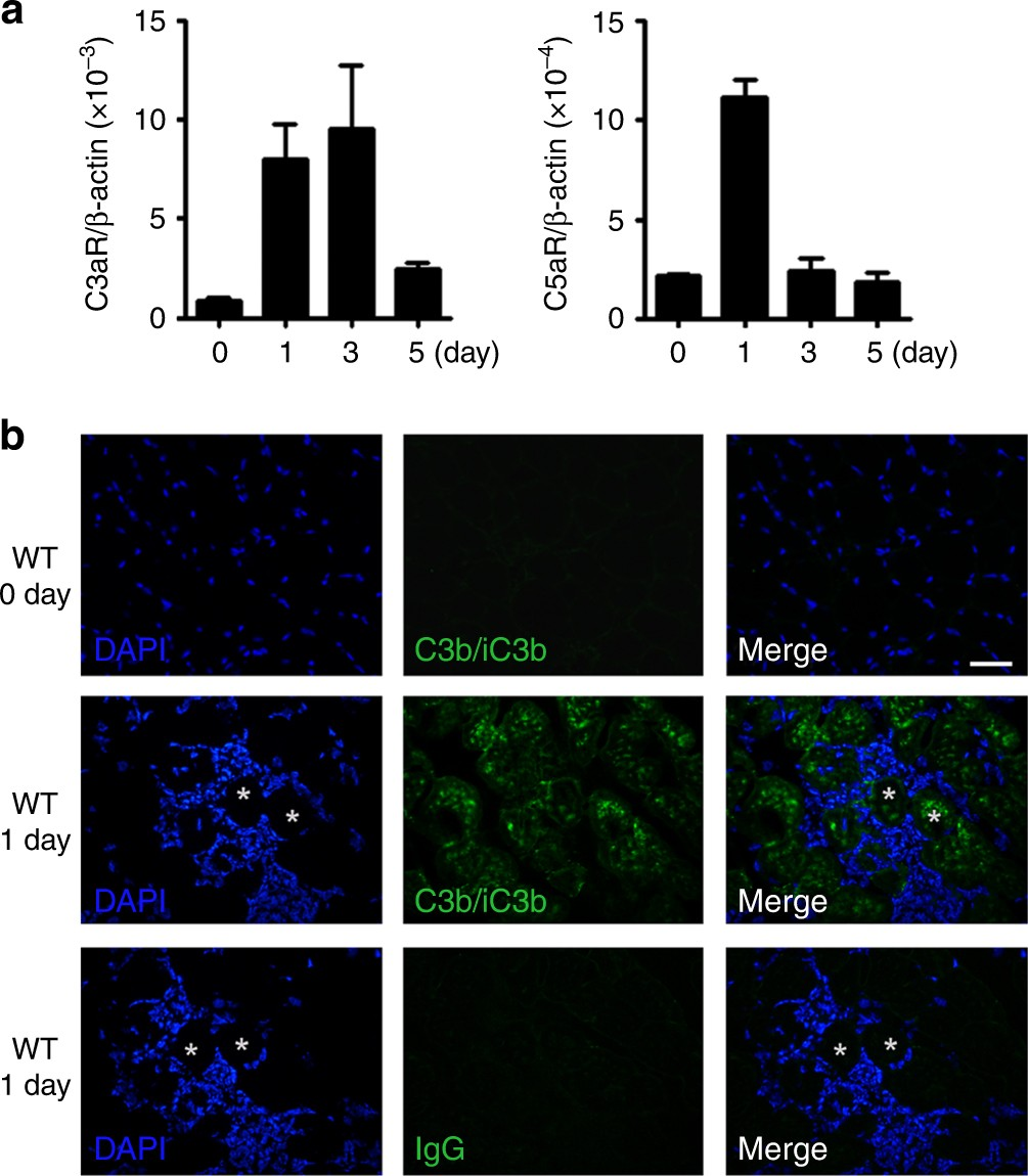 Complement C3a Signaling Facilitates Skeletal Muscle Regeneration By 1 S Circuit Diagram Regulating Monocyte Function And Trafficking Nature Communications
