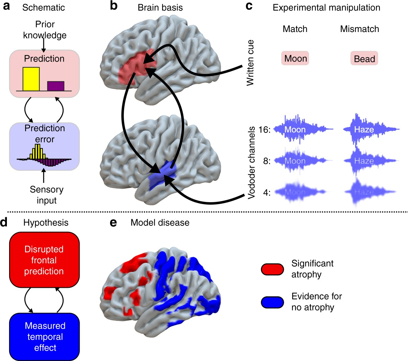 evidence for causal top-down frontal contributions to predictive processes  in speech perception | nature communications