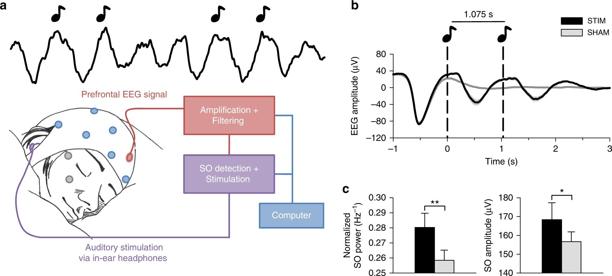 Auditory closed-loop stimulation of EEG slow oscillations