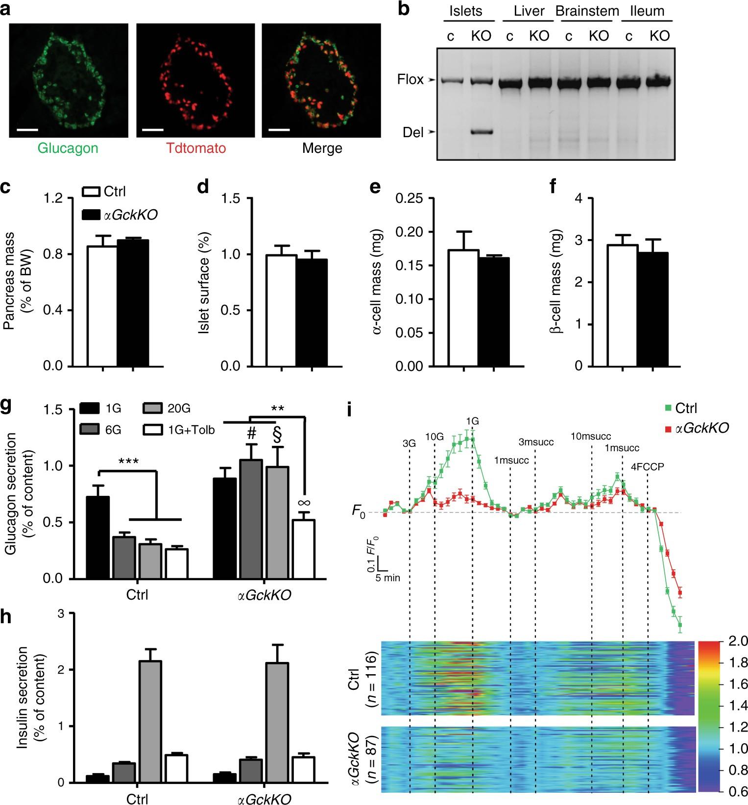 α-cell glucokinase suppresses glucose-regulated glucagon secretion | Nature  Communications