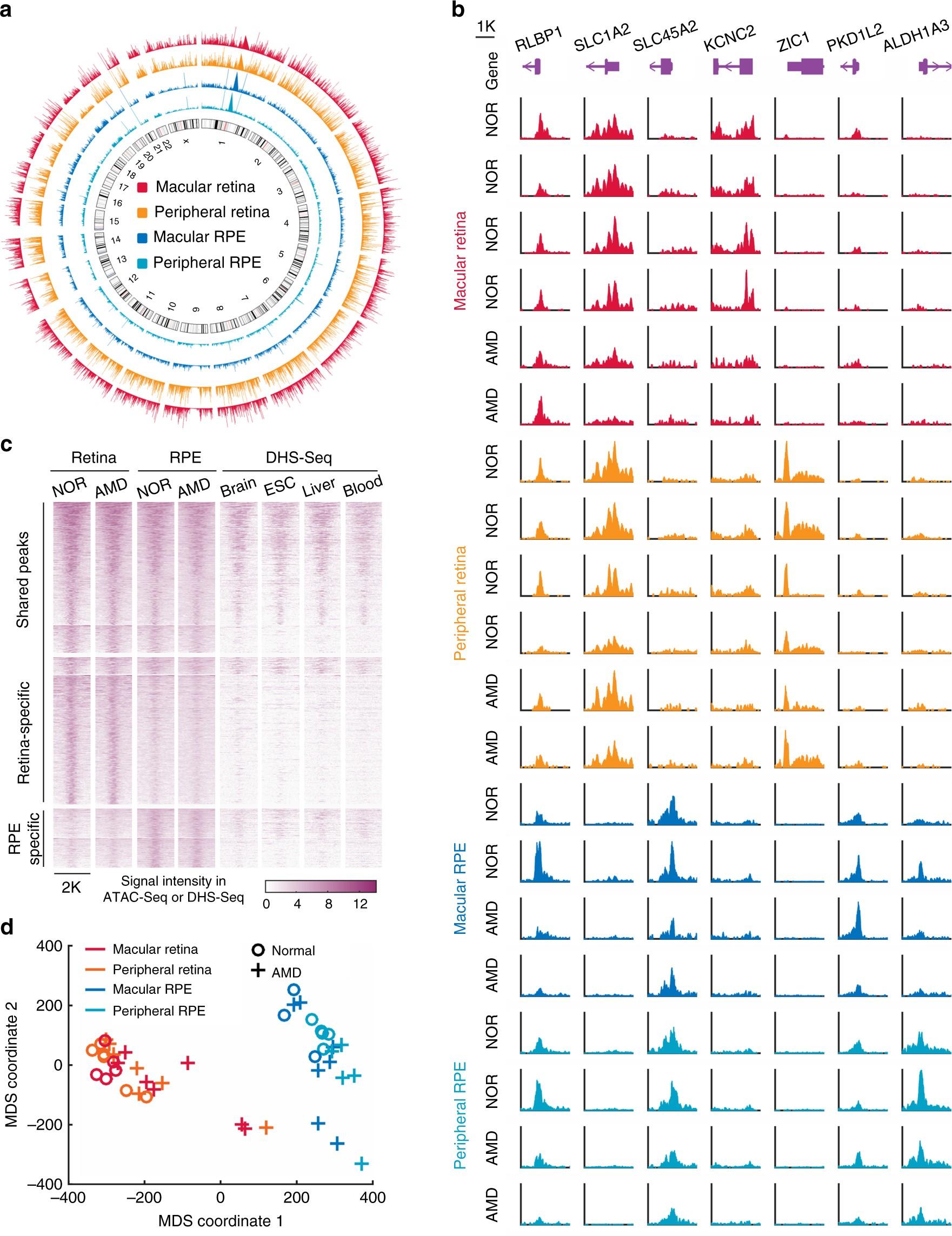 ATAC-Seq analysis reveals a widespread decrease of chromatin