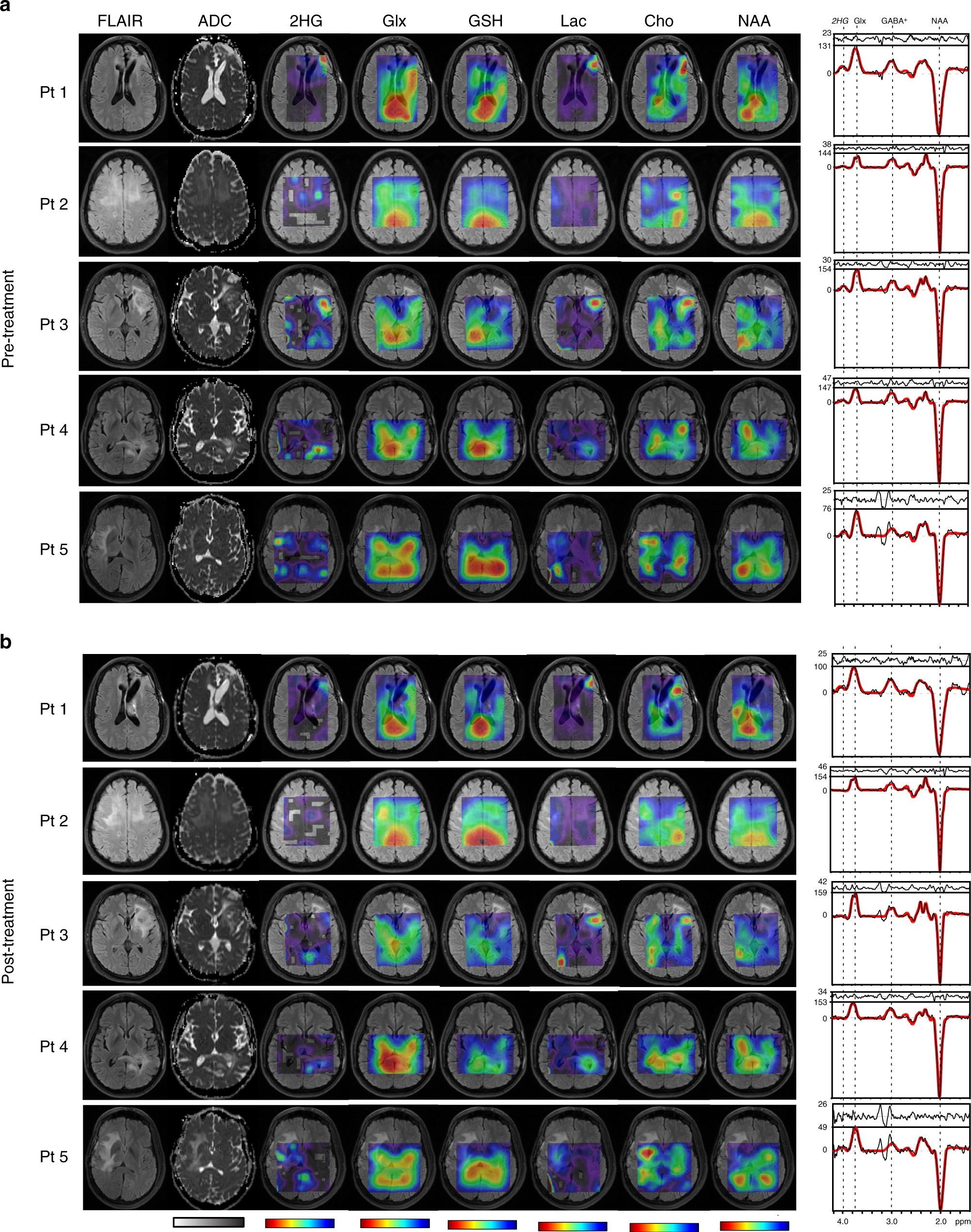 pharmacodynamics of mutant idh1 inhibitors in glioma patients