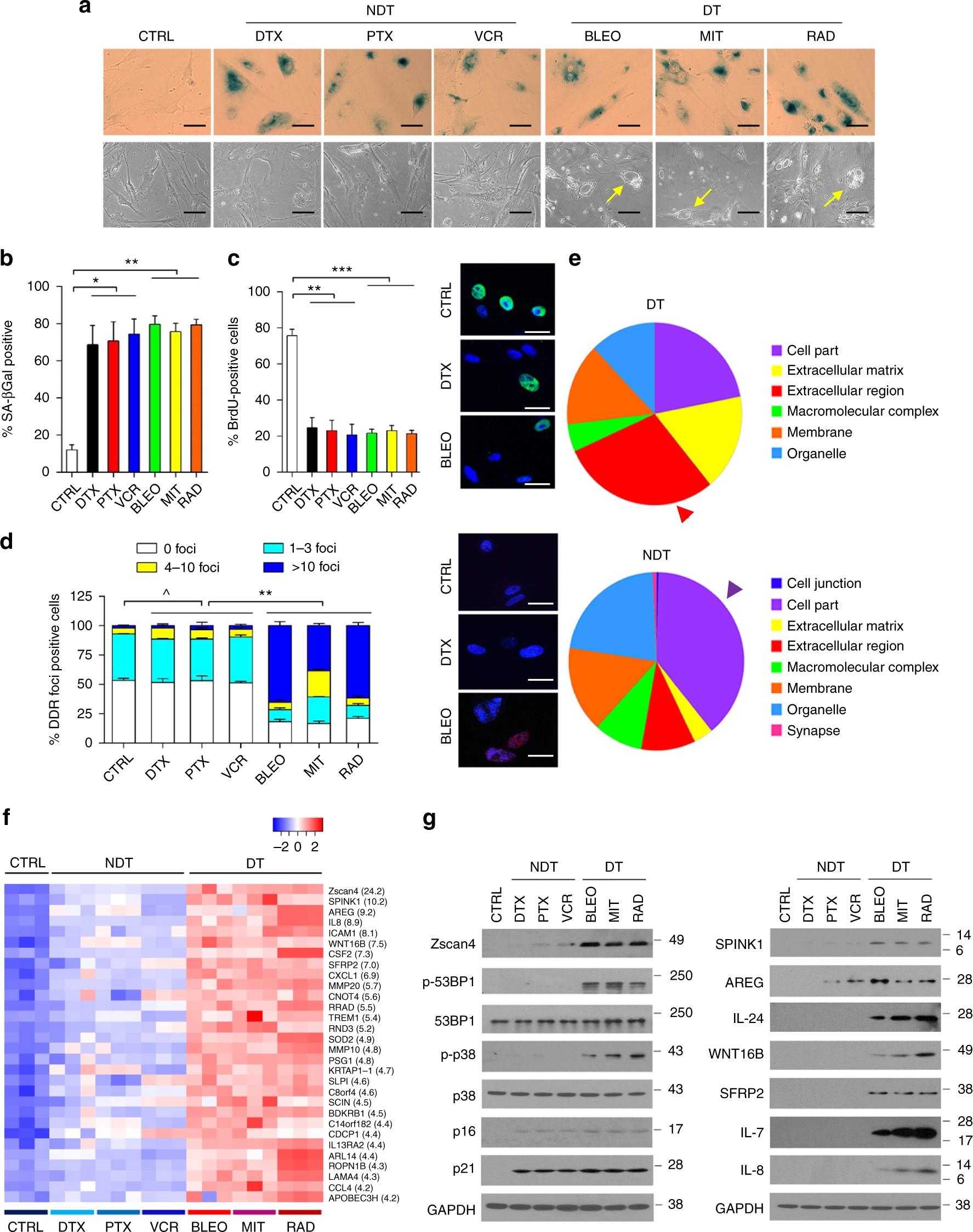Ana Paula Fernández Santacruz Ruiz the senescence-associated secretory phenotype is potentiated