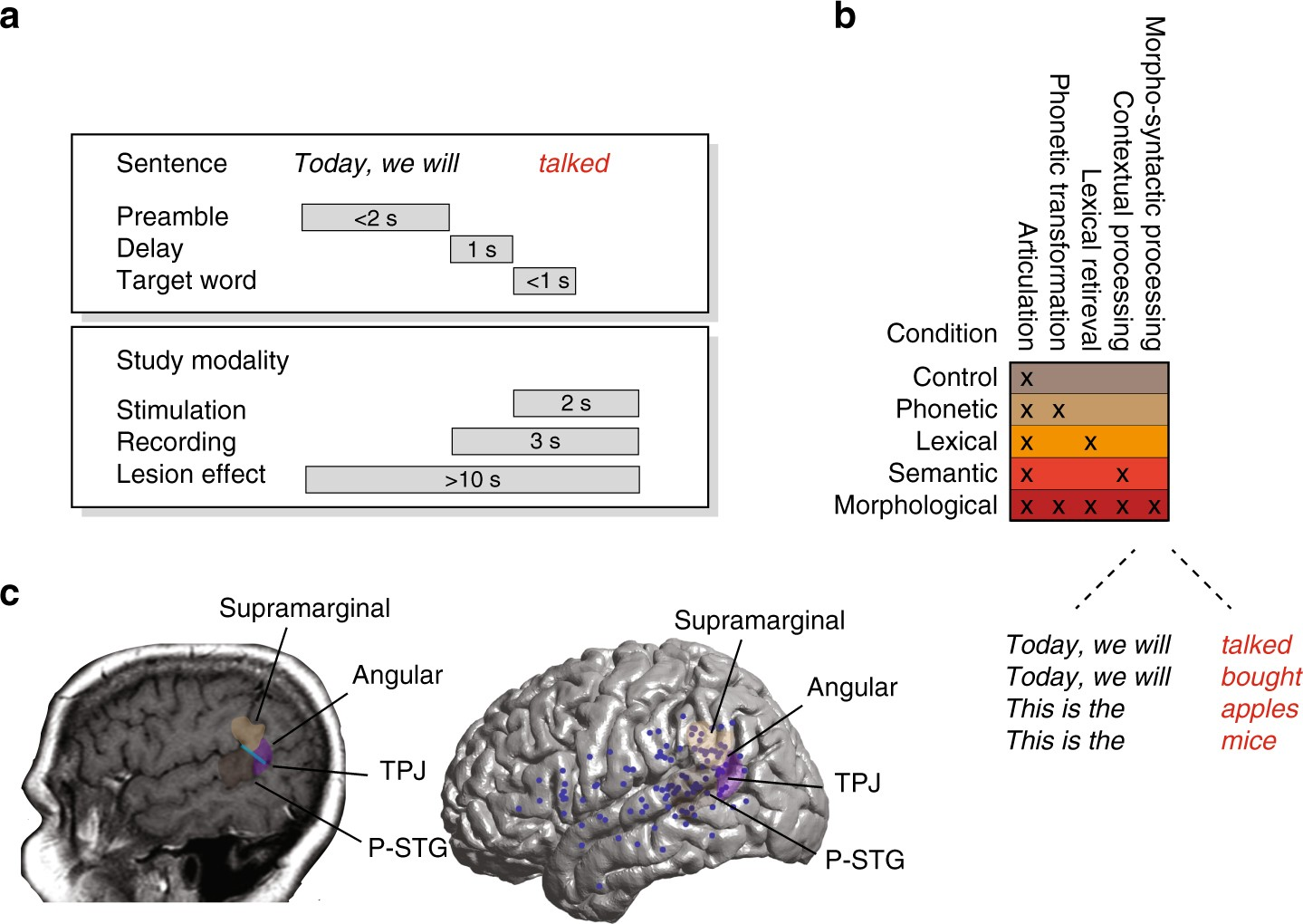 Neural Encoding And Production Of Functional Morphemes In The Headphone Jack Wiring Diagram Furthermore Multiple Speaker Posterior Temporal Lobe Nature Communications