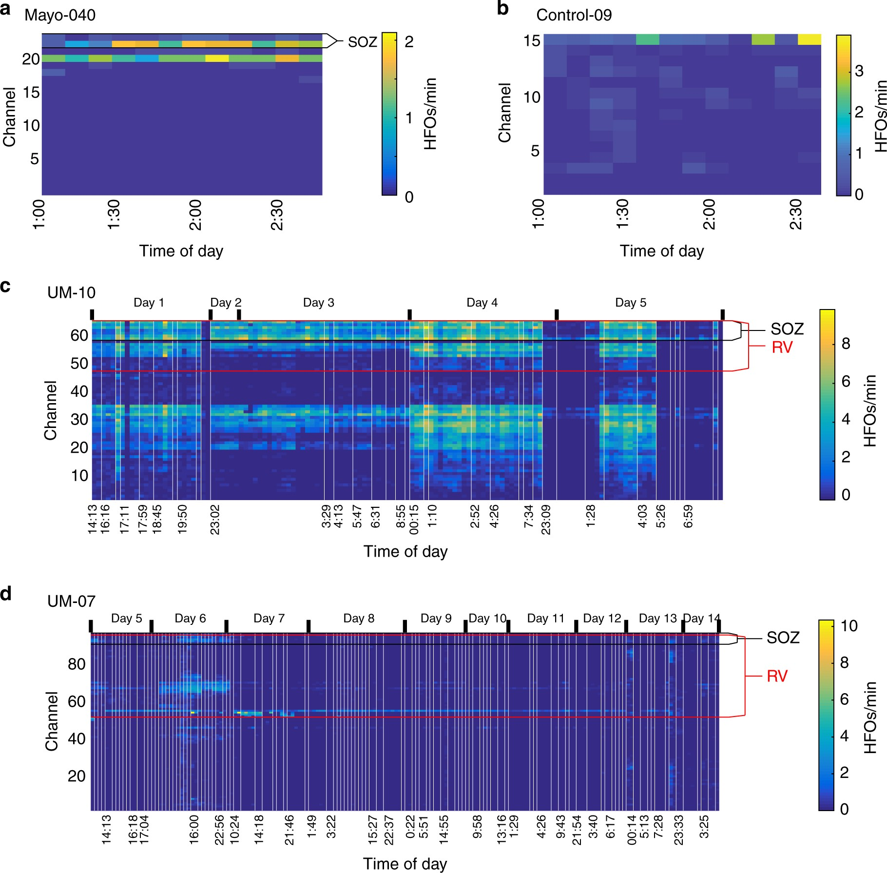 Variability In The Location Of High Frequency Oscillations During F Stop Icu Gate Prolonged Intracranial Eeg Recordings Nature Communications