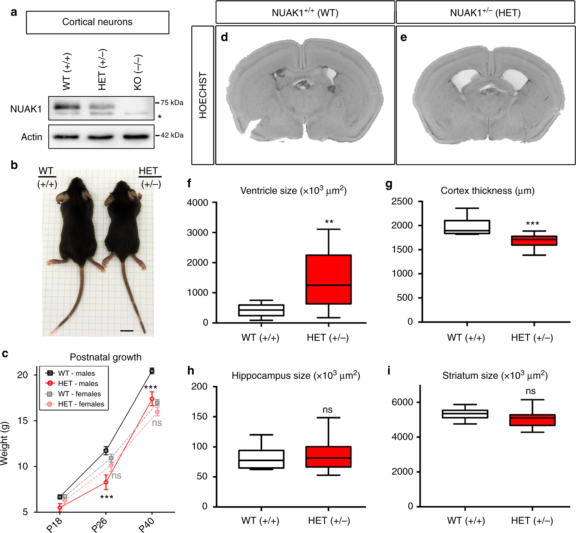 Haploinsufficiency Of Autism Spectrum Disorder Candidate Gene Nuak1 Simple Low Battery Indicator Circuit As Well Tube Tone Control Impairs Cortical Development And Behavior In Mice Nature Communications