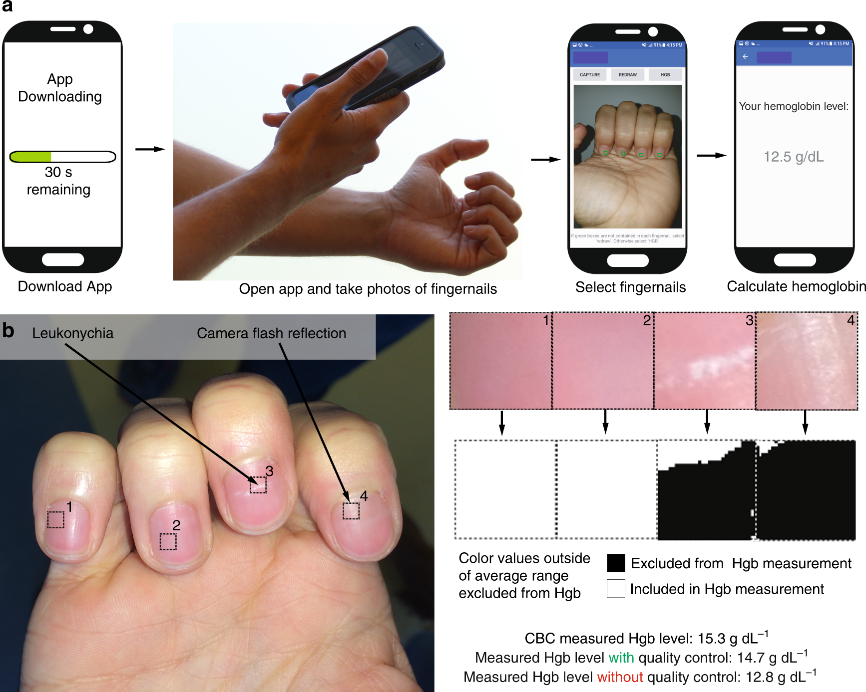 Smartphone app for non-invasive detection of anemia using