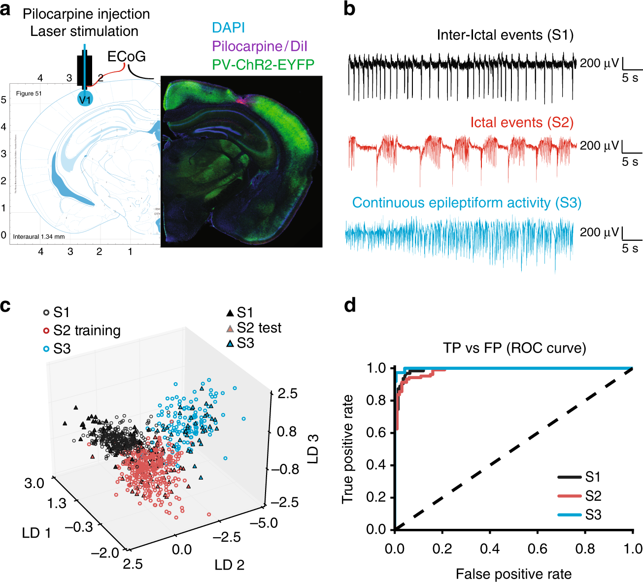 KCC2 overexpression prevents the paradoxical seizure-promoting