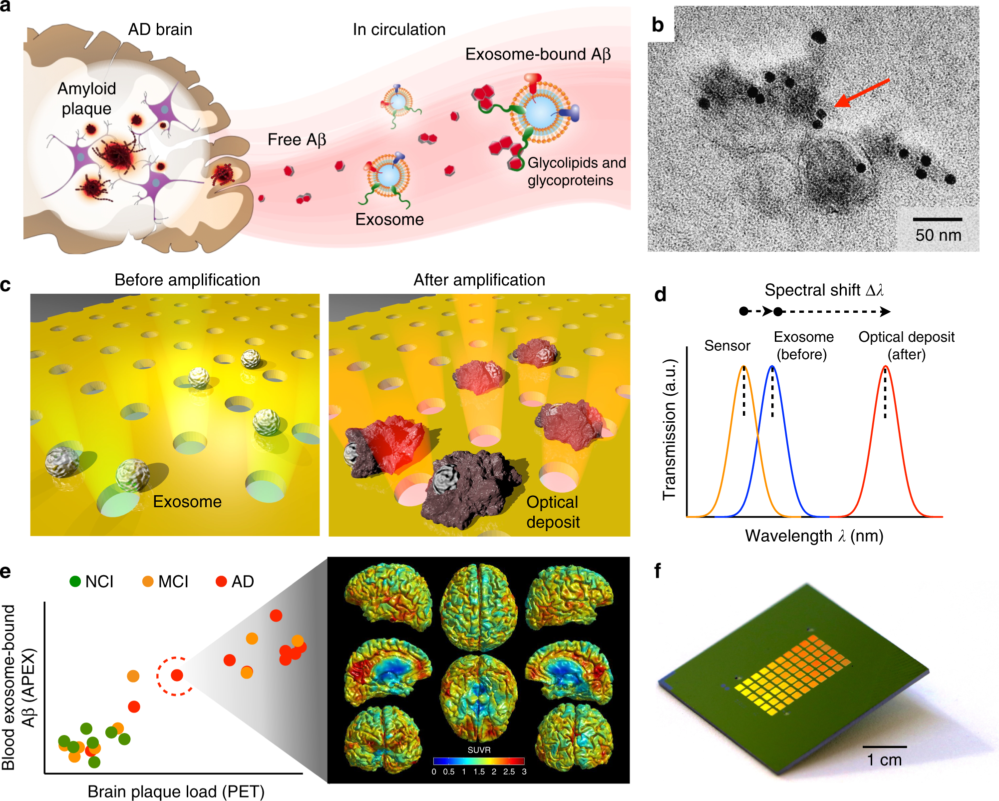 Subtyping of circulating exosome-bound amyloid β reflects