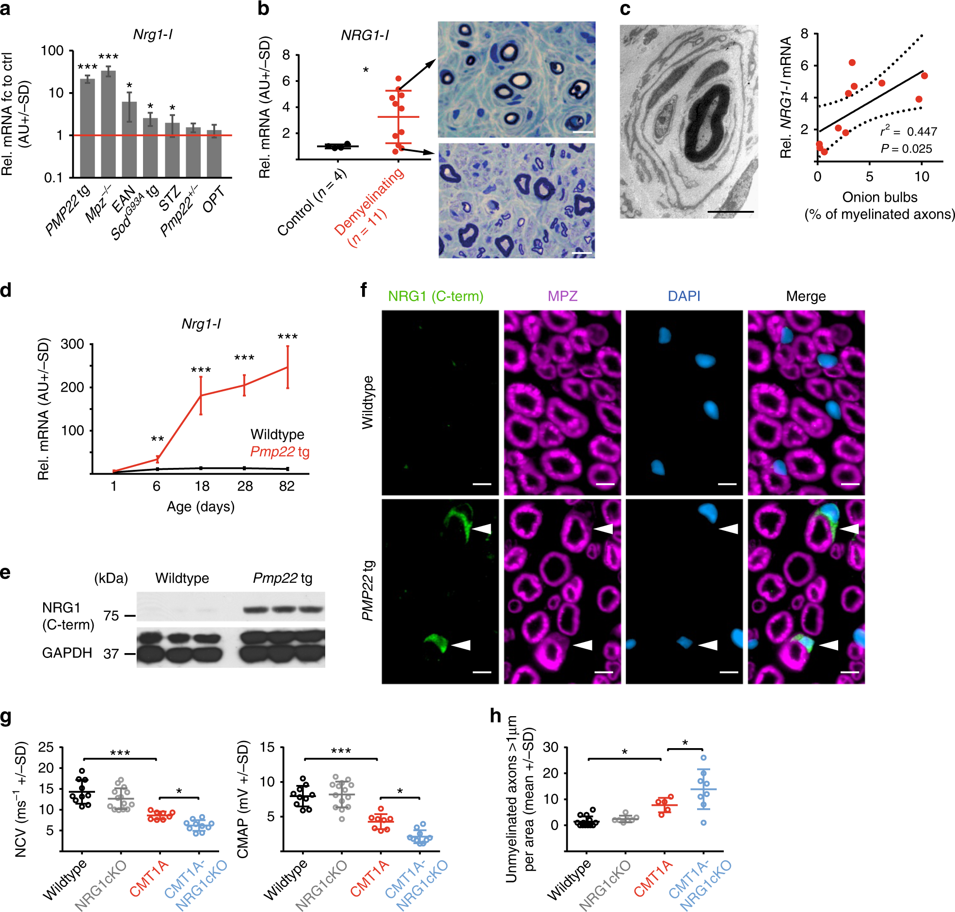 nrg1 type i dependent autoparacrine stimulation of schwann cells in onion  bulbs of peripheral neuropathies | nature communications