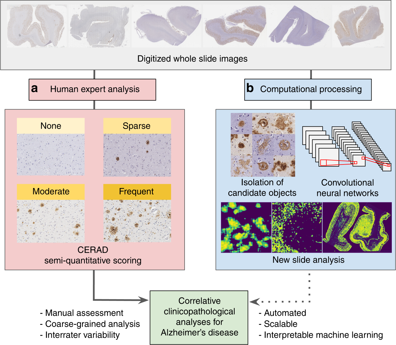 Interpretable classification of Alzheimer's disease