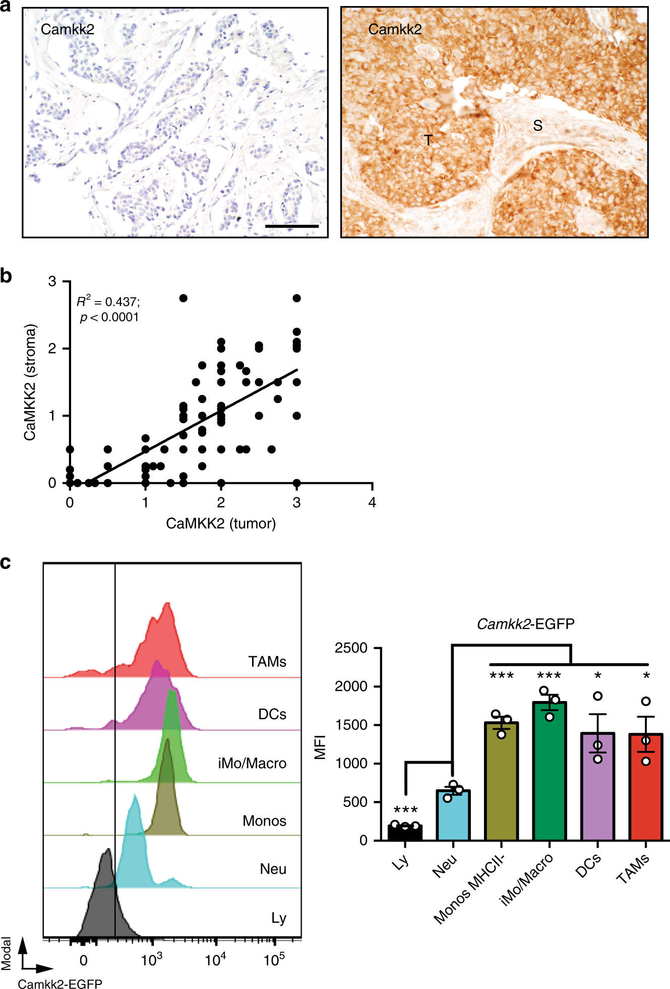 camkk2 in myeloid cells is a key regulator of the immune-suppressive  microenvironment in breast cancer | nature communications