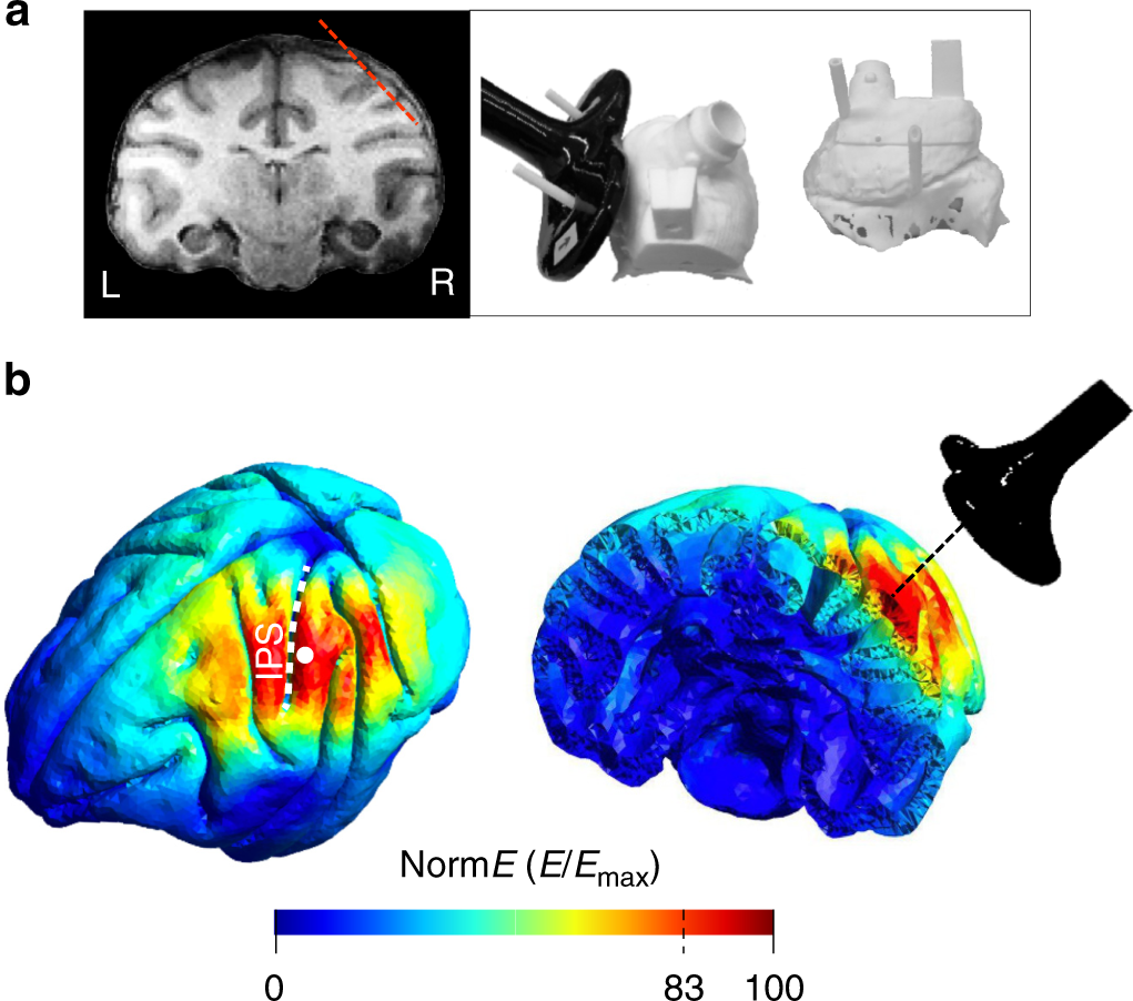 Neural effects of transcranial magnetic stimulation at the