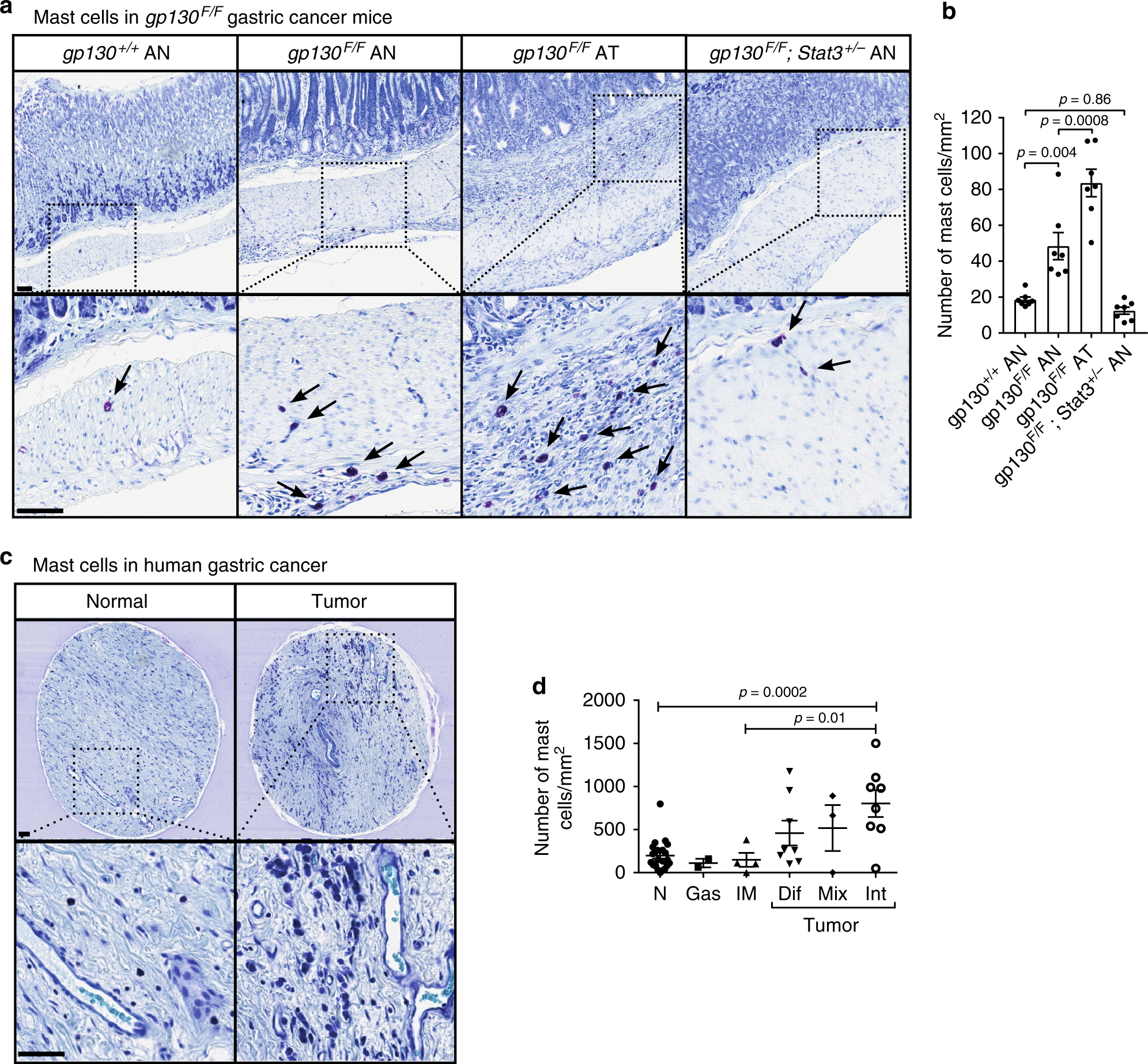 IL-33-mediated mast cell activation promotes gastric cancer