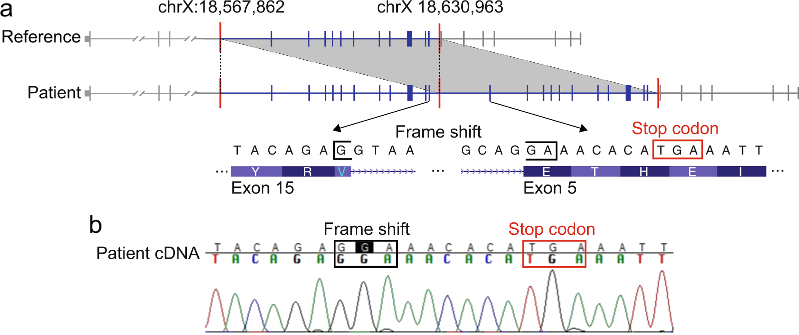 Whole Genome Ysis For Effective Clinical Diagnosis And Gene Discovery In Early Infantile Epileptic Encephalopathy Npj Genomic Medicine