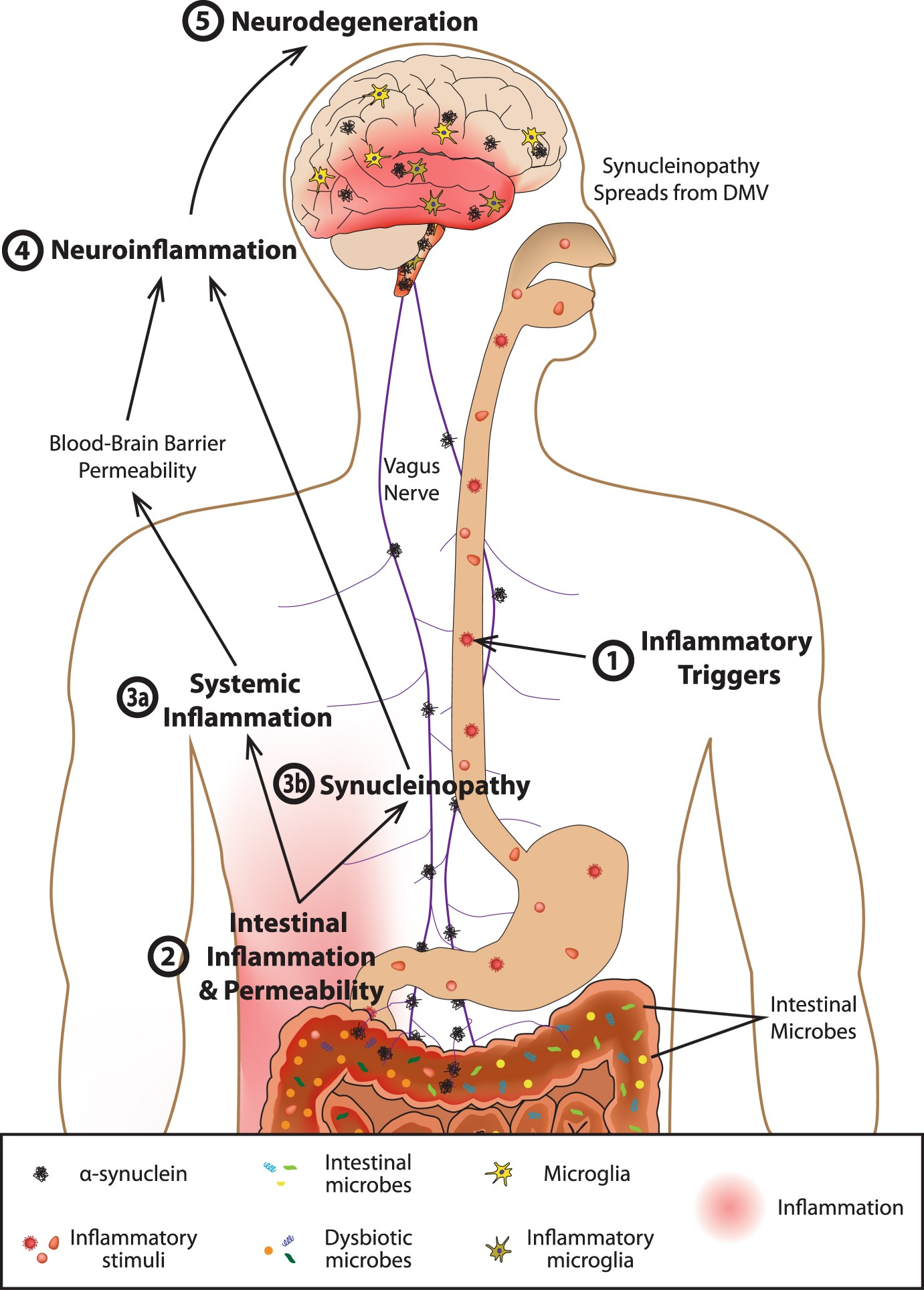 The gut-brain axis: is intestinal inflammation a silent driver of