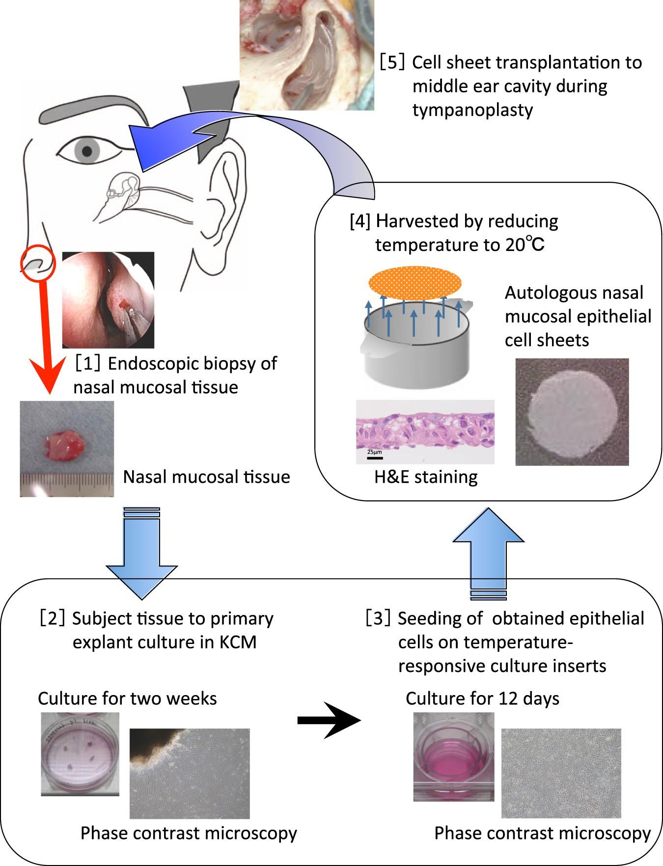 Middle Ear Mucosal Regeneration By Tissue Engineered Cell Sheet Transplantation