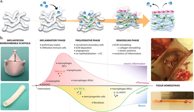 Biomaterial-driven in situ cardiovascular tissue engineering—a multi