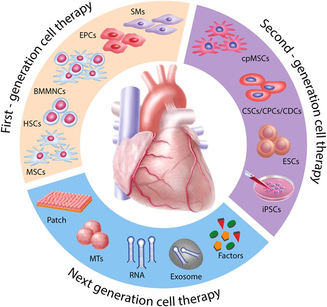 Translational cardiac stem cell therapy: advancing from first