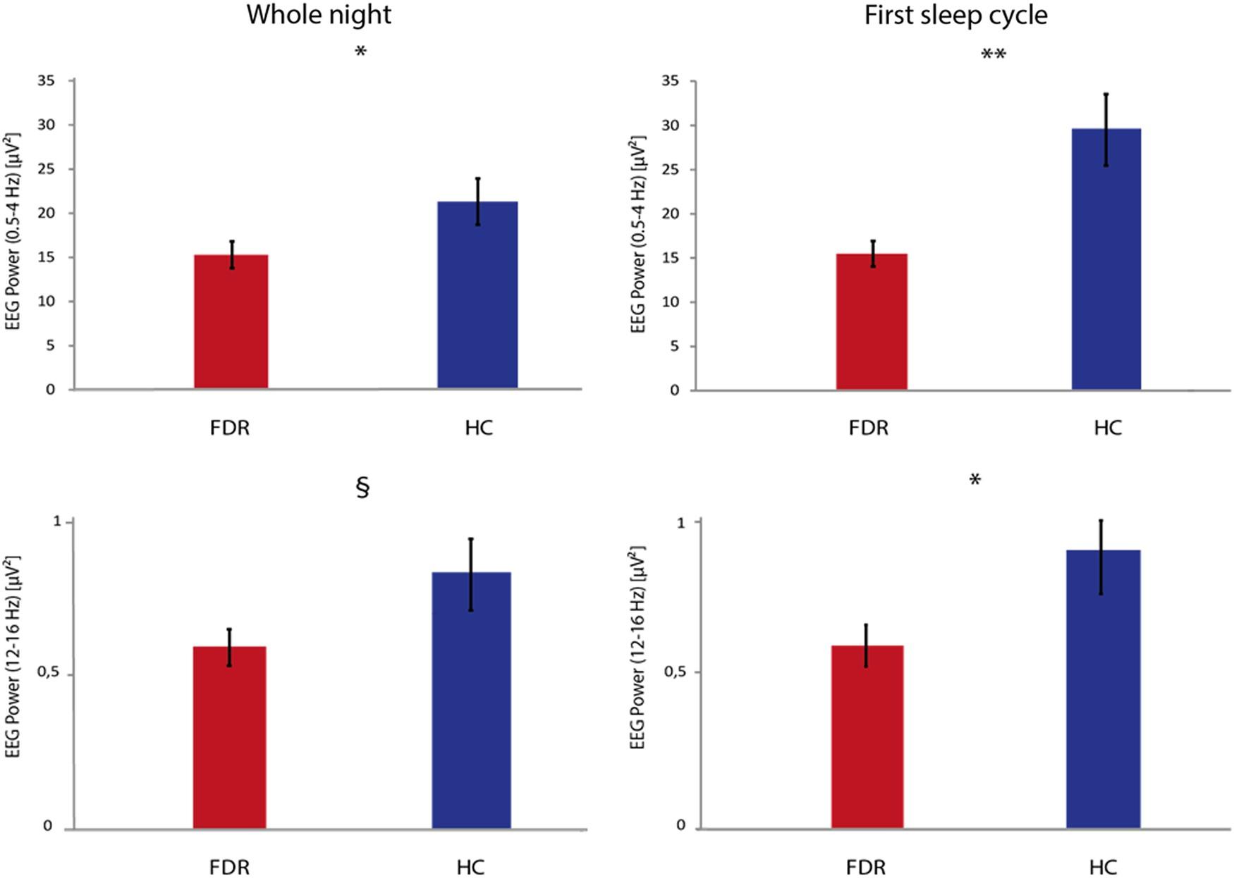 Sleep endophenotypes of schizophrenia: slow waves and sleep spindles