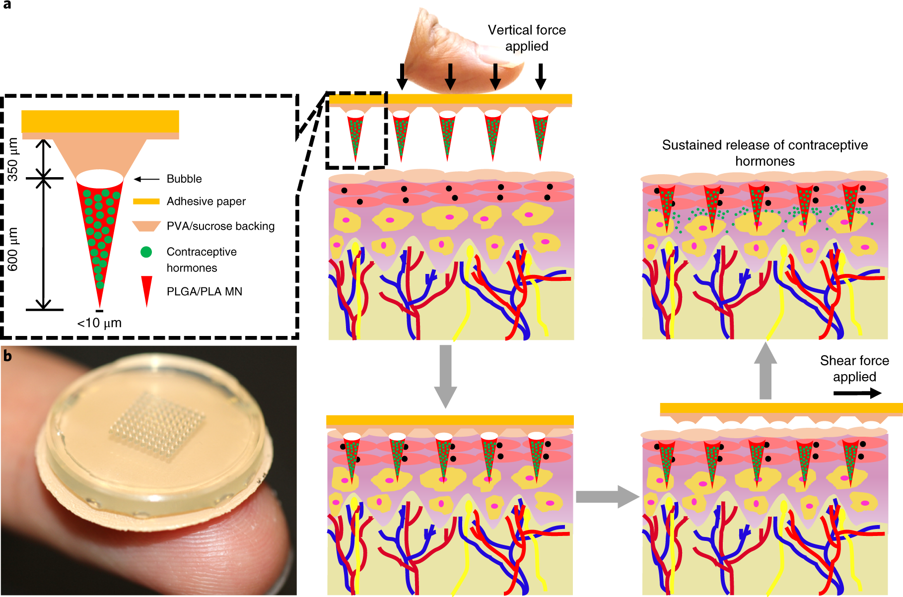 Rapidly separable microneedle patch for the sustained