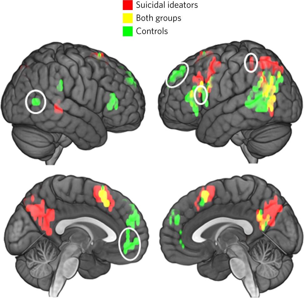 Risultati immagini per suicide link brain
