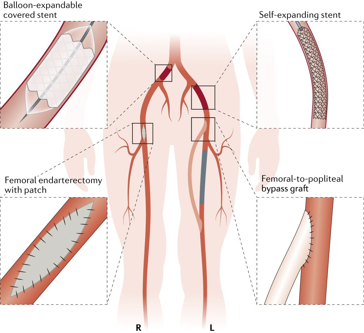 Interventions for lower extremity peripheral artery disease | Nature ...