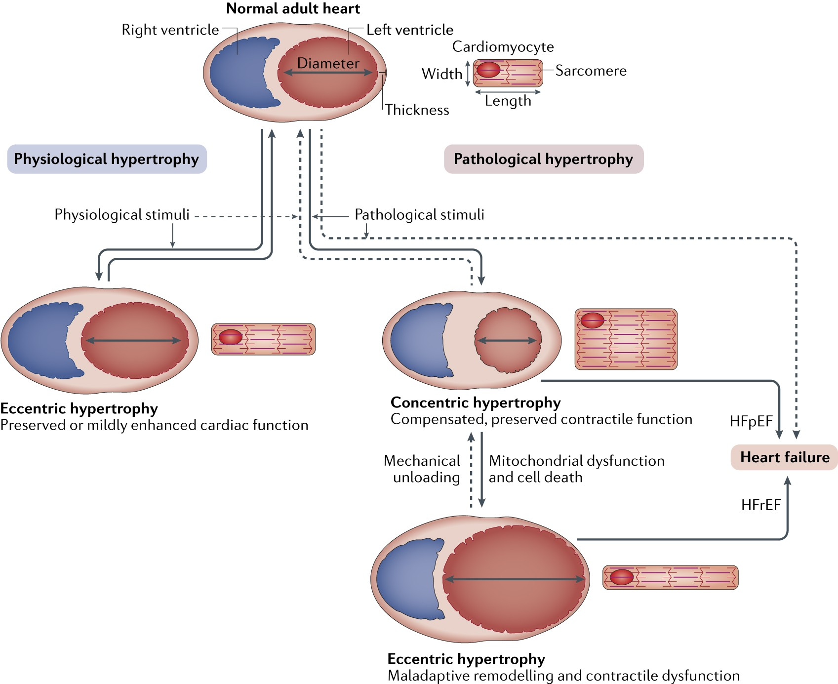 mechanisms of physiological and pathological cardiac hypertrophy