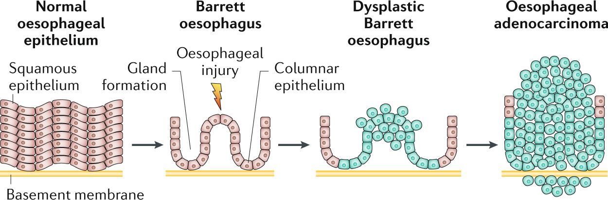 Barrett oesophagus | Nature Reviews Disease Primers