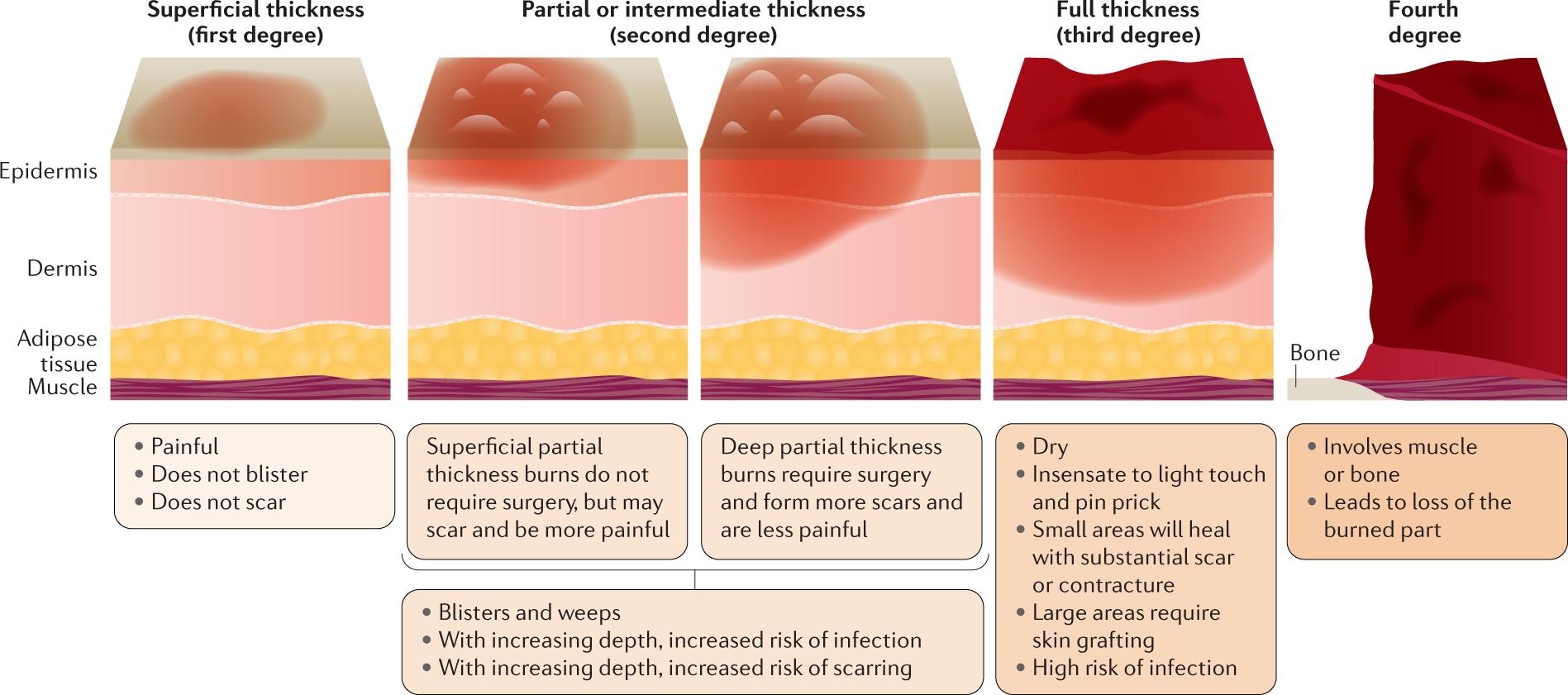 Burn Injury Nature Reviews Disease Primers