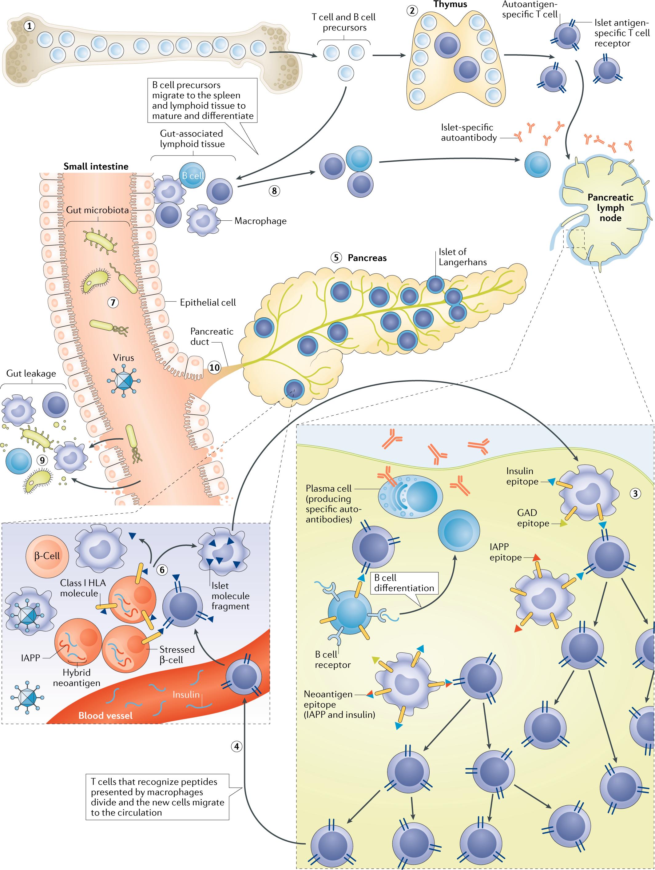 The heterogeneous pathogenesis of type 1 diabetes mellitus