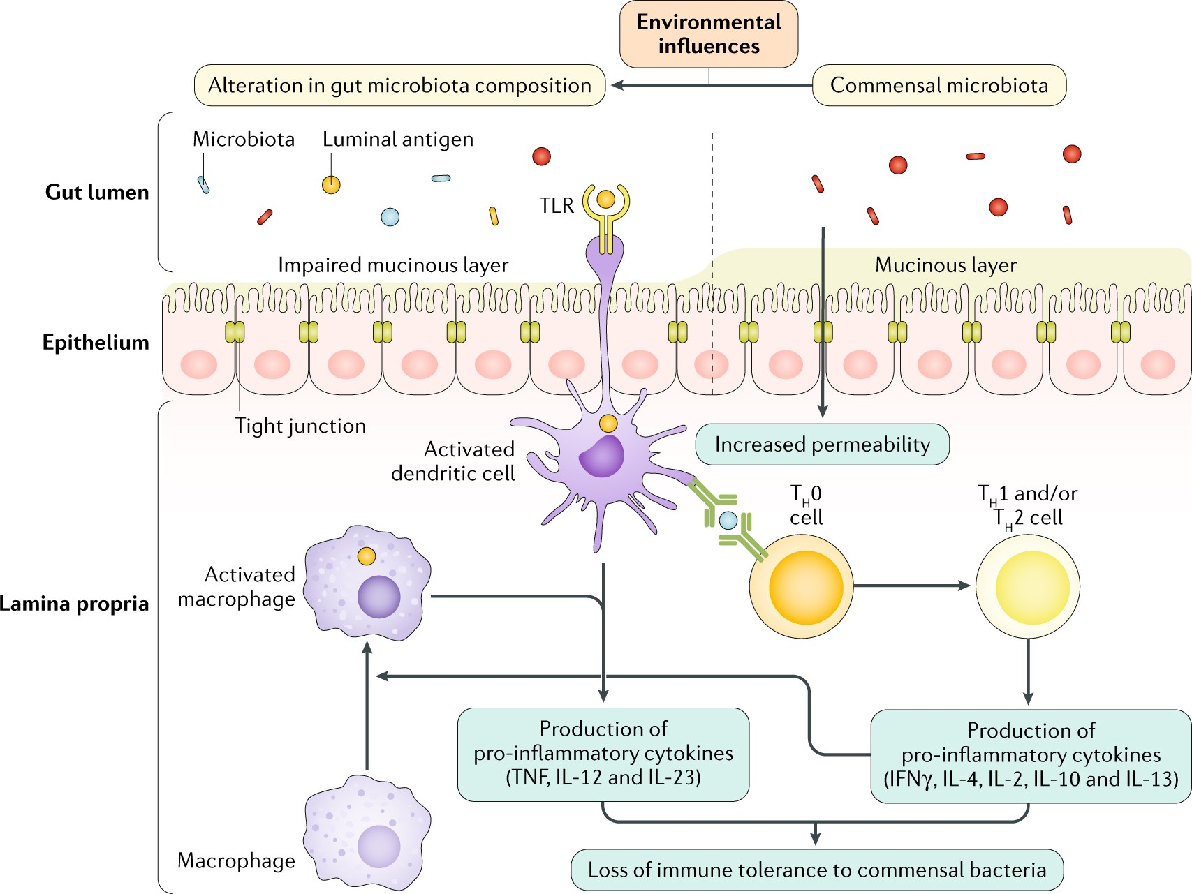 The role of diet in the aetiopathogenesis of inflammatory