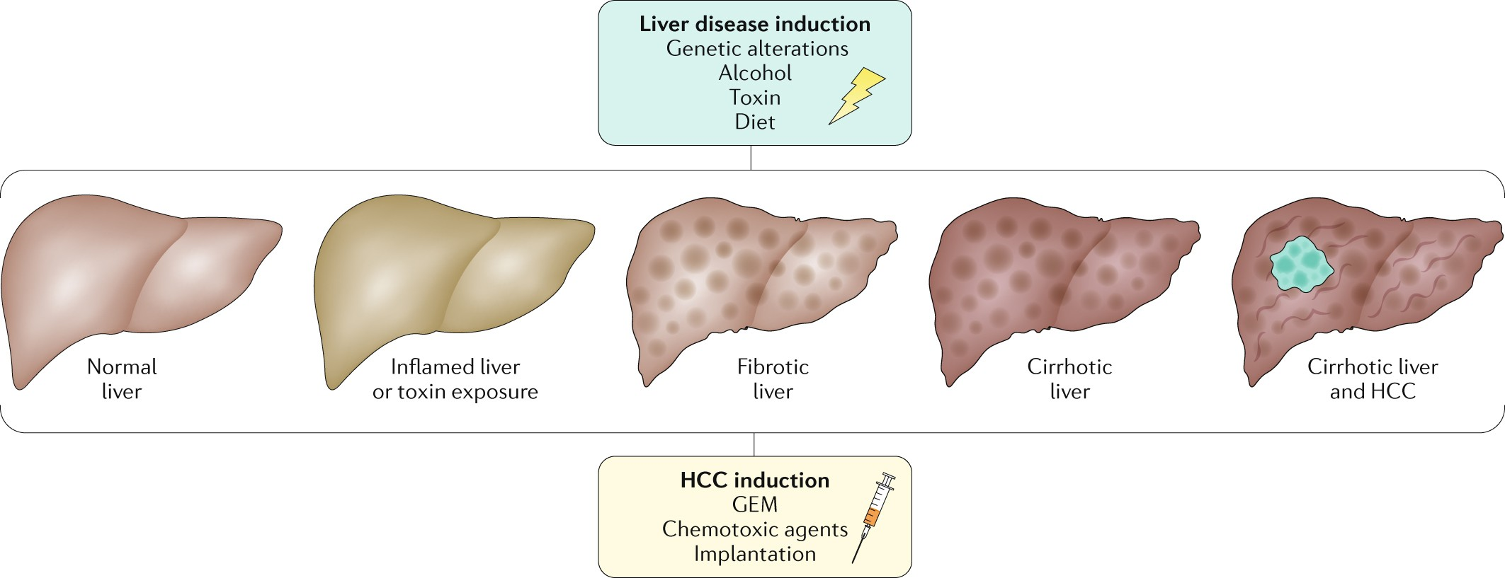 Mouse models of hepatocellular carcinoma: an overview and highlights ...
