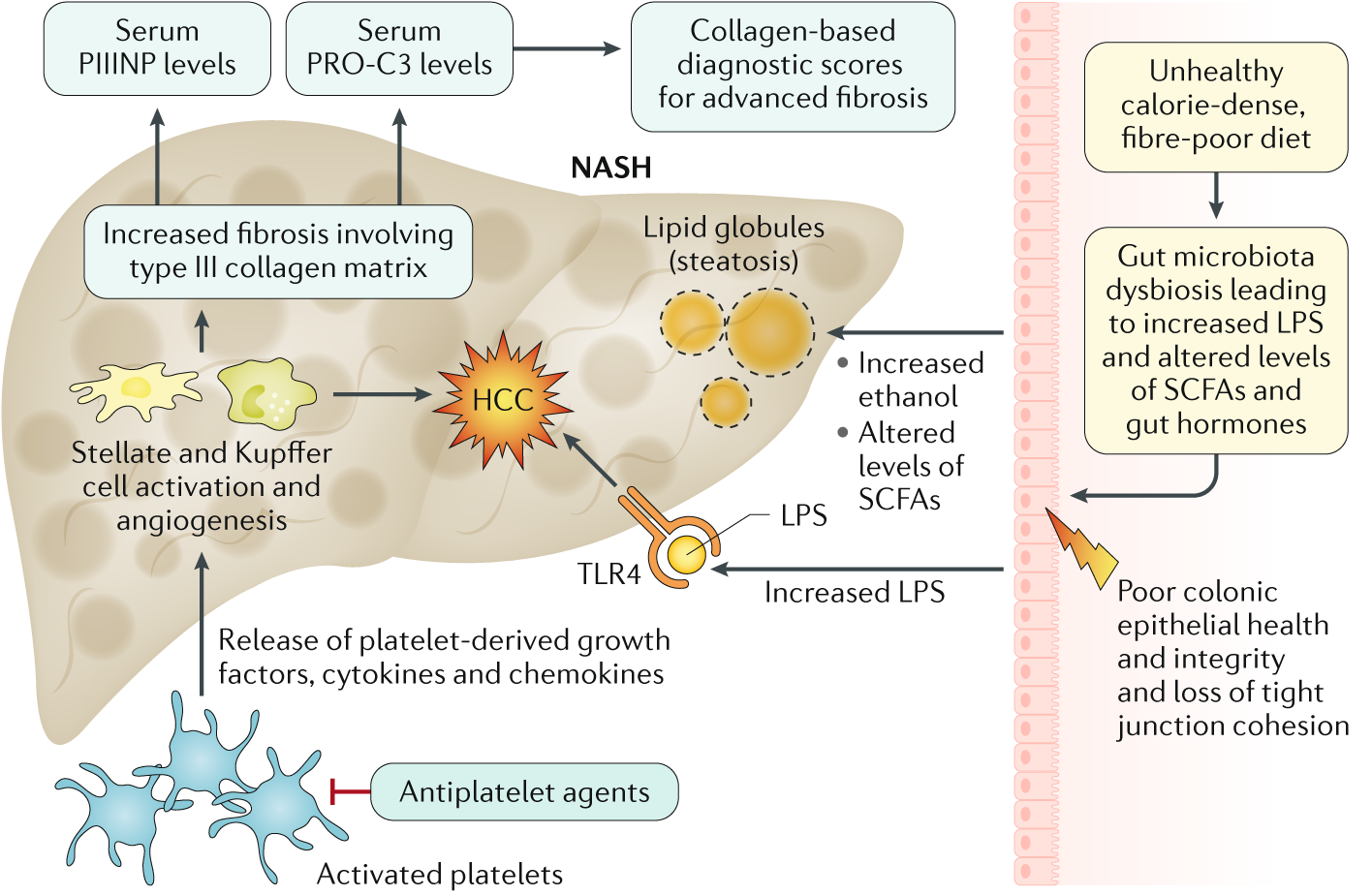 What's new in NAFLD pathogenesis, biomarkers and treatment?