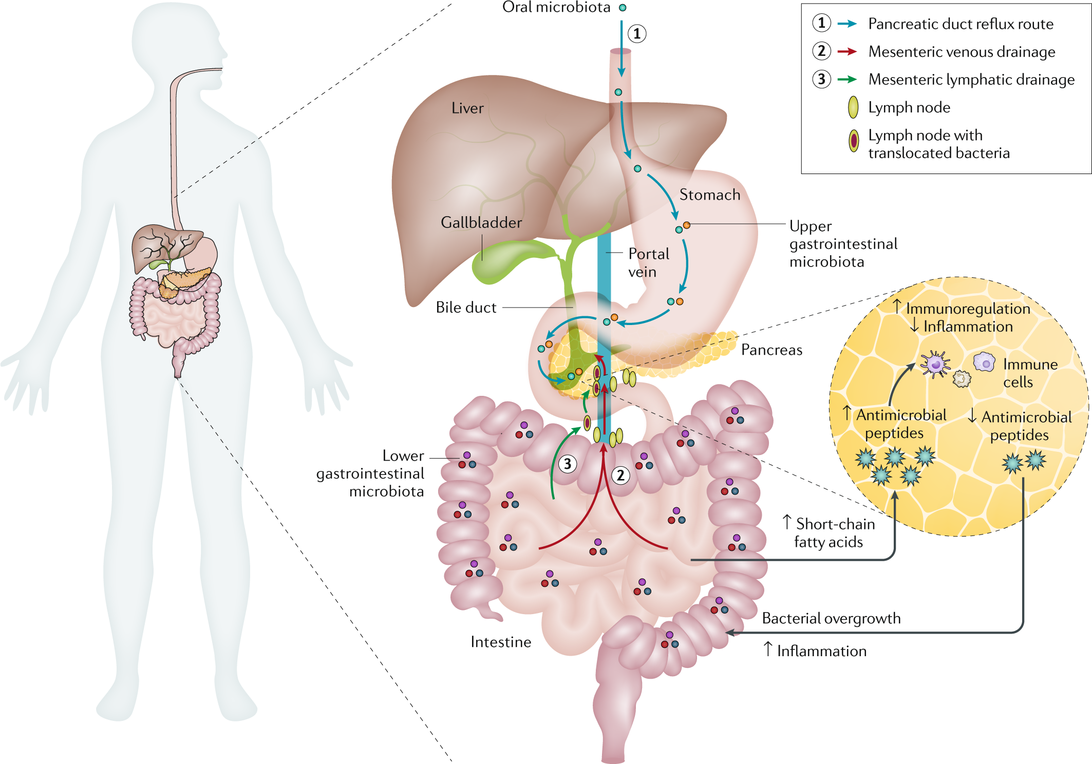Microbiota in pancreatic health and disease: the next frontier in micr
